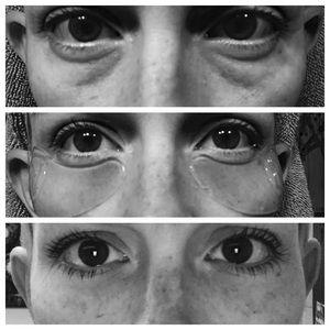 🌱Neora Hydrogel Eye Patches🌱